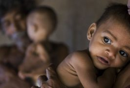 Malnutrition- The Silent Catastrophe and the Miraculous supplements
